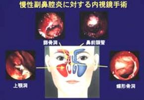 炎 手術 副 鼻腔 慢性 副鼻腔炎の手術から2週間、リアルな術後の状況